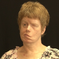 Ruth Ann Yingling - From Nursing Home to Supported Living